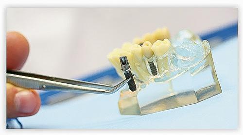 Implantatprothetik_Dr-Lindhammer_Berlin